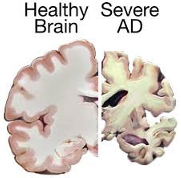 Brain in AD or Alzheimer's disease