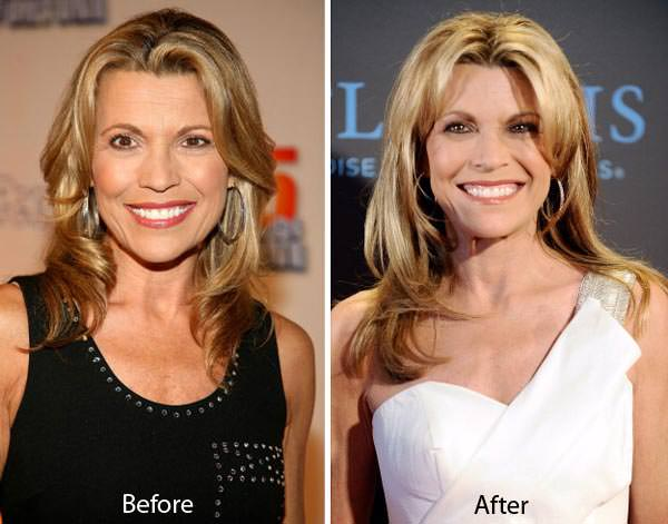 Source: Celebrity Plastic Surgery (Vanna White Plastic Surgery Before & After)