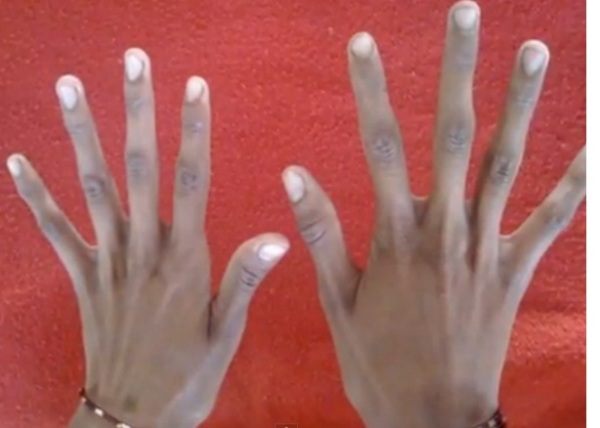 Source: OMICS International (On the right is the Marfan syndrome hands which have arachnodactyly (spider-fingers) or long fingers as compared with the normal hand on the left hand side)