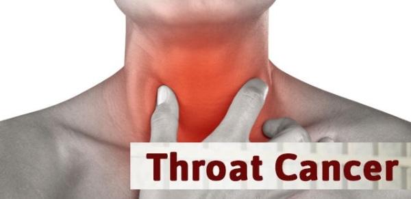 Source: Symptom Checker (Throat Cancer)