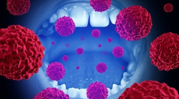 Source: Dentistry IQ HPV (Virus and oral cancer)