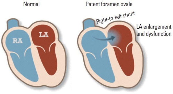 Source: Journal of Stroke (Patent Foramen Ovale)