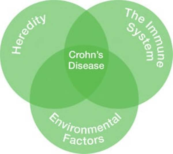 Causes of Crohn's disease