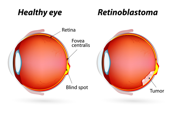 Source: Genetics Home reference (Retinoblastoma)