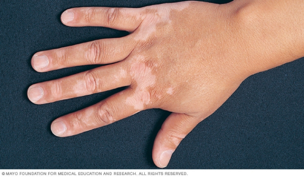 Source: Mayo Clinic (Vitiligo on hands)