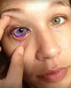 Canadian model Catt Gallinger left partially blind due to eyeball tattooing! Know what the inventor Luna Cobra and AAO has to say about this body modification technique!