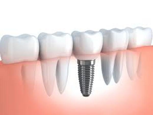 Source: Millenium Dental (Titanium permanent dental implant)