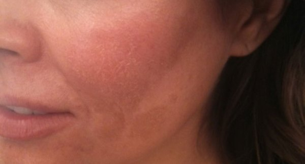 Source: The Doctors (Brooke Burke's melasma)