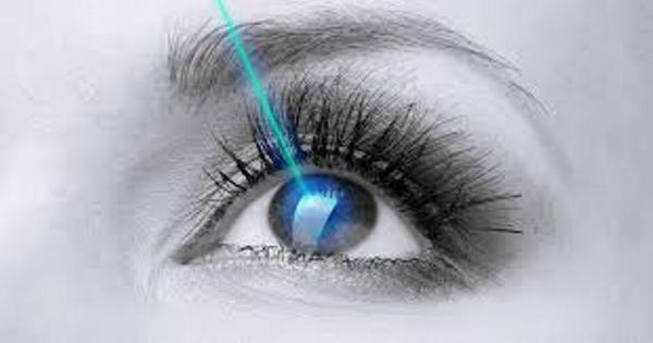 Source: All About Vision (LASIK surgery)