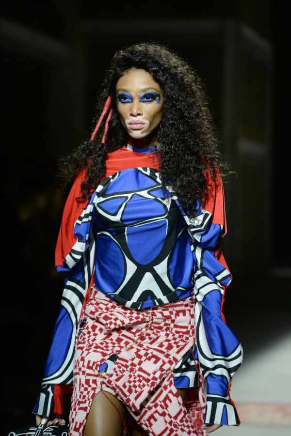 Source: Yahoo Style UK (Winnie Harlow)