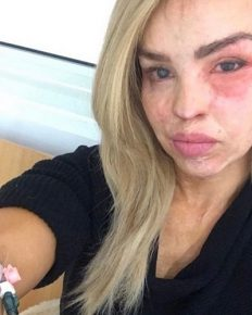 Strictly Come Dancing contestant and acid attack survivor, Katie Piper shares about her depression and anxiety despite it been more than a decade after the acid attack!