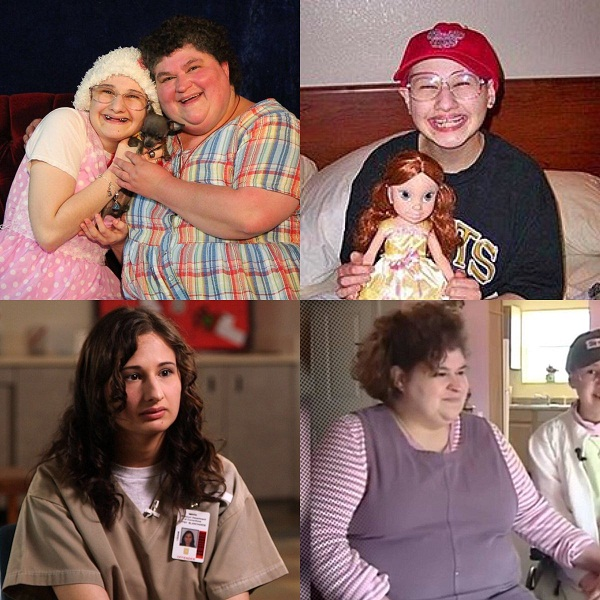 The severe form of Munchausen Syndrome by proxy! Dee Dee Blanchard's