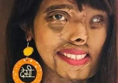Inspirational Story Of A Acid Attack Survivor Anmol Rodriguez! A Girl Who Became The Victim Of Her Own Father When She Was A Child