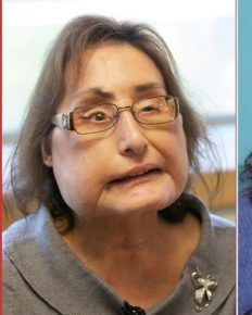 Connie Culp, the first USA face transplant patient dies at age 57!