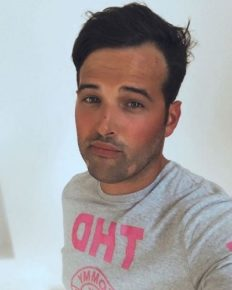 Former TOWIE star Ricky Rayment shares with his fans about his medical condition of Alopecia!